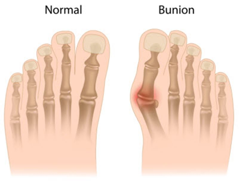 Picture for category Bunion Correctors