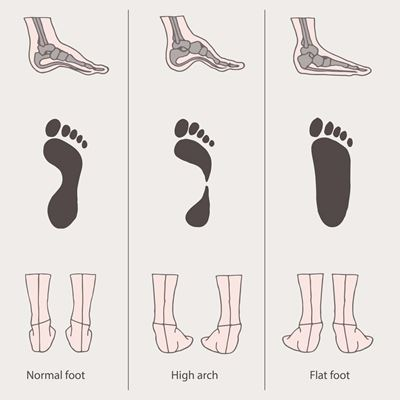 Reasons for Foot Pain While Walking