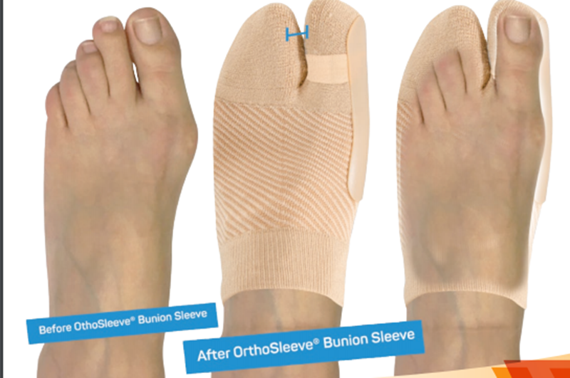 Picture of HV3 Bunion Bracing Sleeve (Bunion, Arthritis)